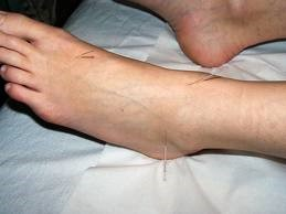 Acupuncture - Kent Foot & Ankle Clinic